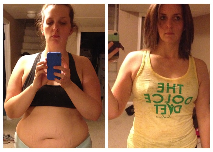 stephanie before after 700 x 500